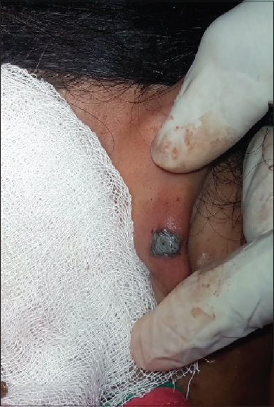 Ayurvedic cosmetic reconstruction for aural keloid of ear